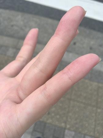 手湿疹After